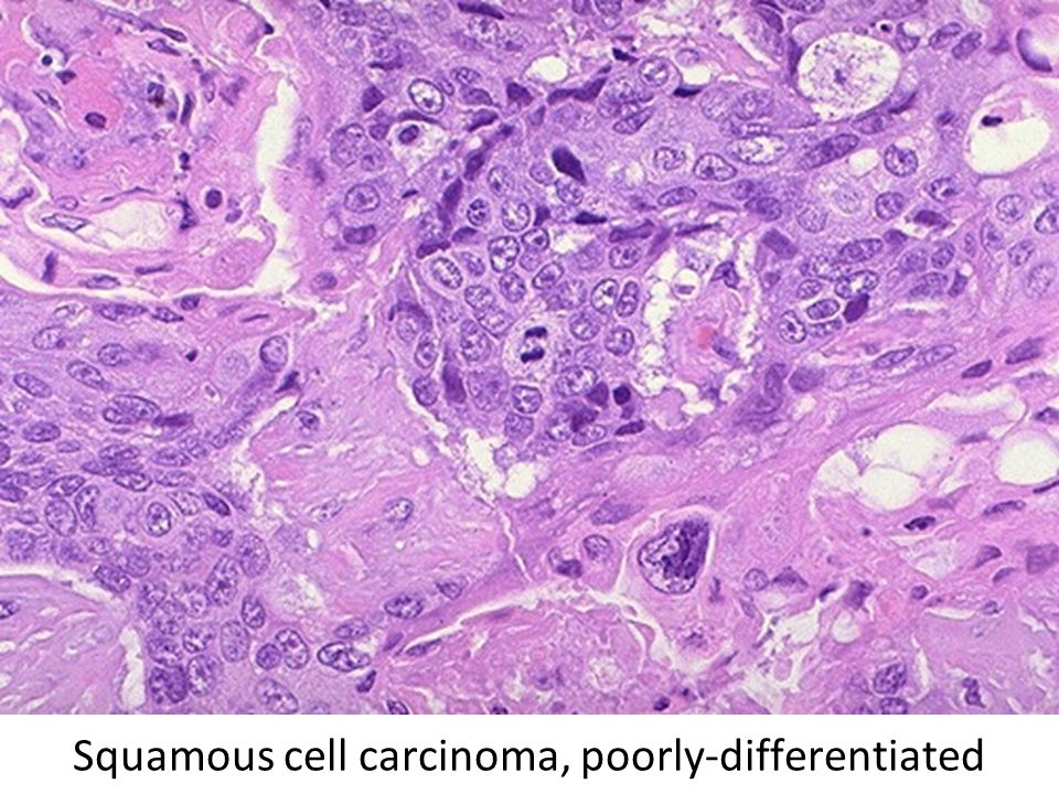 Squamous cell carcinoma, poorly-differentiated