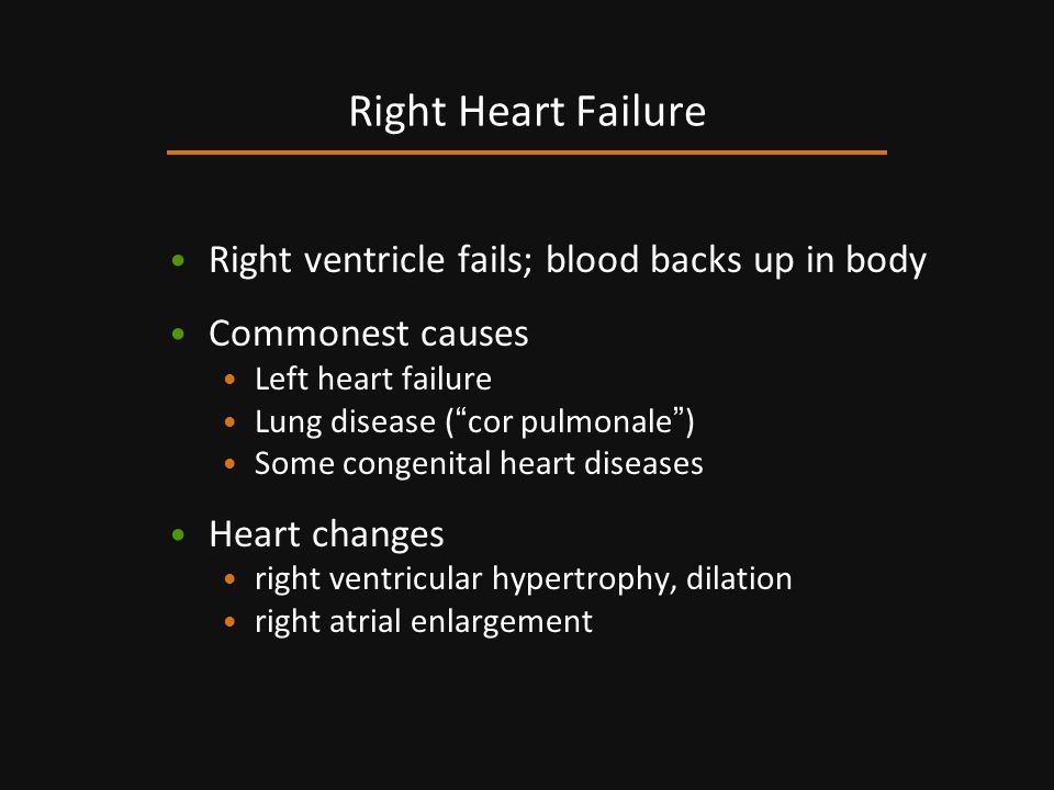 Right Heart Failure Right ventricle fails; blood backs up in body