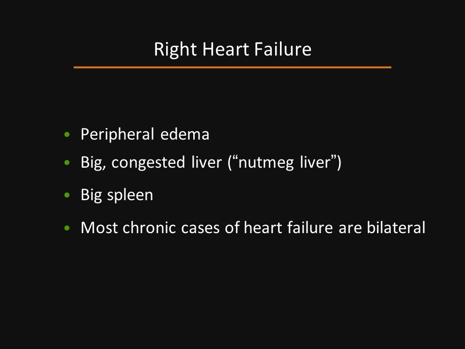 Right Heart Failure Peripheral edema