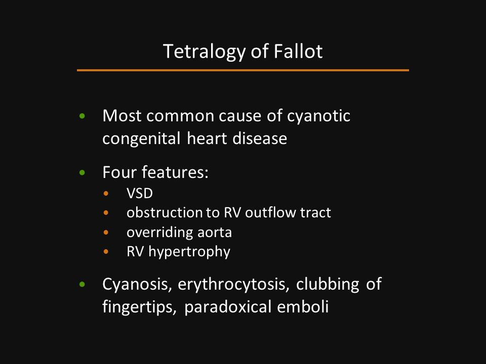 Tetralogy of Fallot Most common cause of cyanotic congenital heart disease. Four features: VSD. obstruction to RV outflow tract.