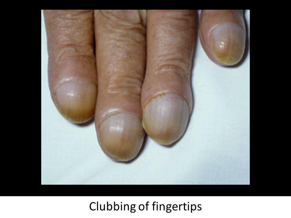 Clubbing of fingertips