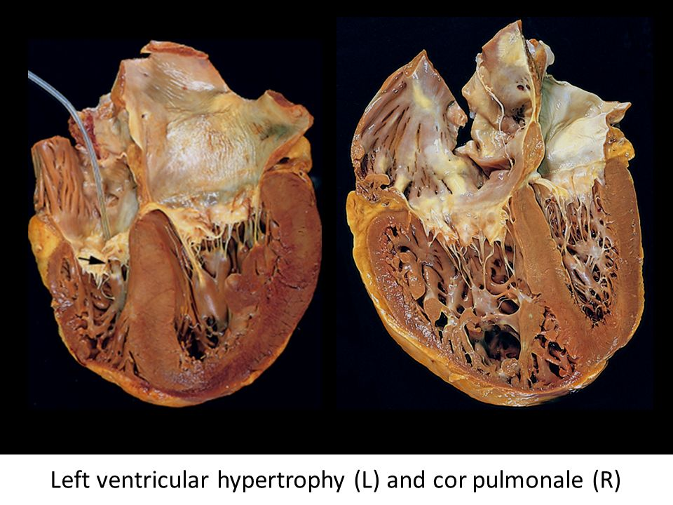 Left ventricular hypertrophy (L) and cor pulmonale (R)