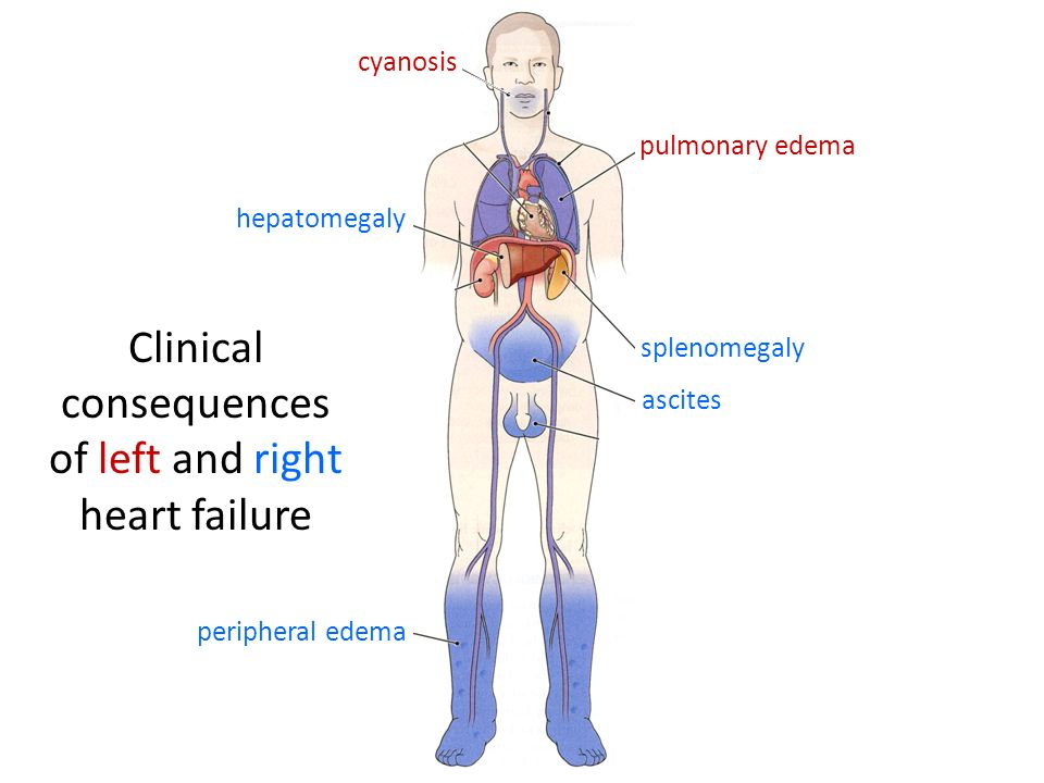 Clinical consequences of left and right heart failure