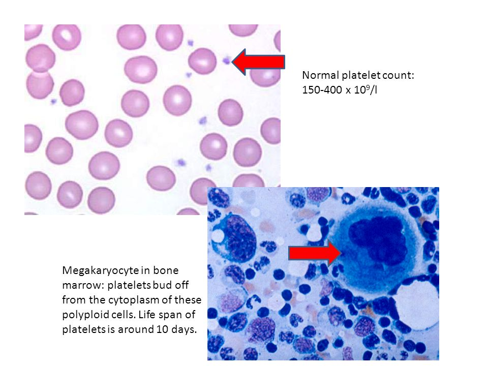 Normal platelet count: