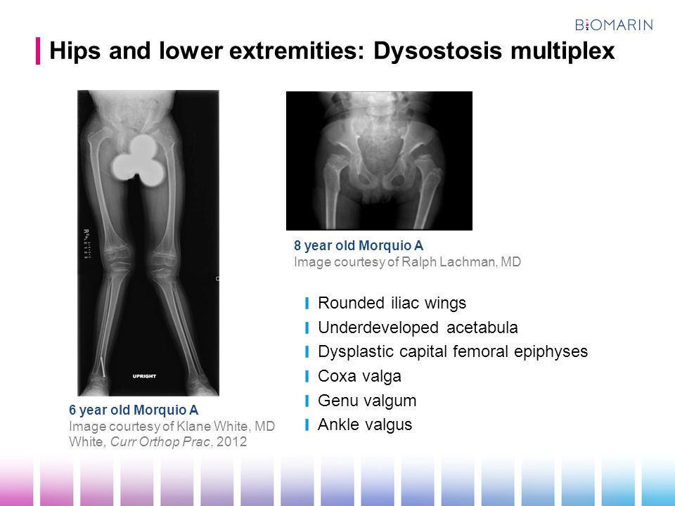 Hips and lower extremities: Dysostosis multiplex