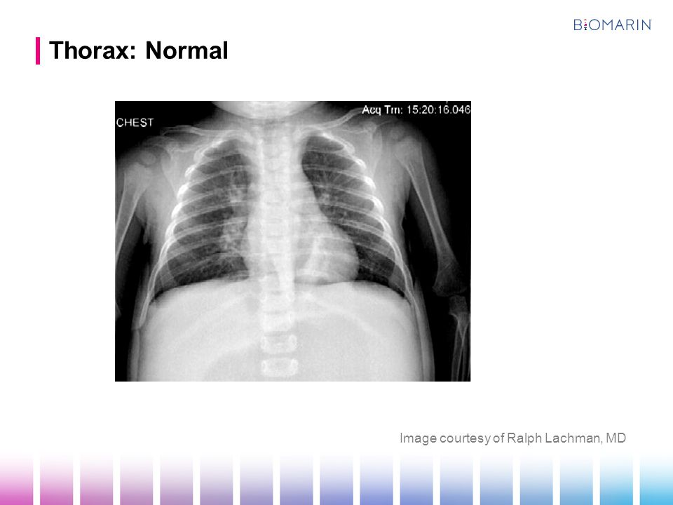 Thorax: Normal Image courtesy of Ralph Lachman, MD