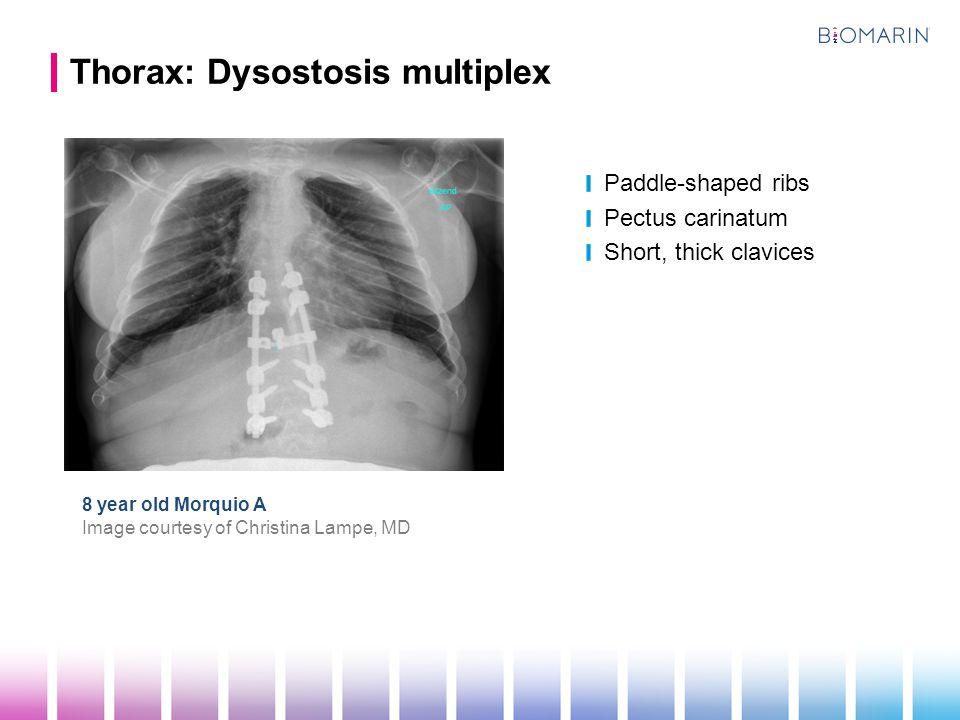 Thorax: Dysostosis multiplex