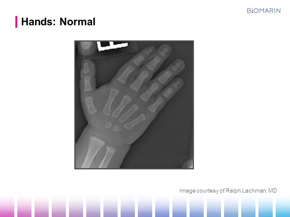 Hands: Normal Image courtesy of Ralph Lachman, MD