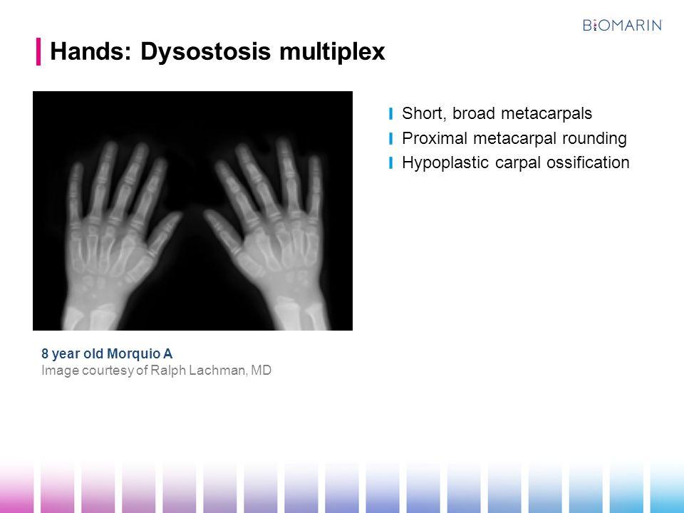 Hands: Dysostosis multiplex