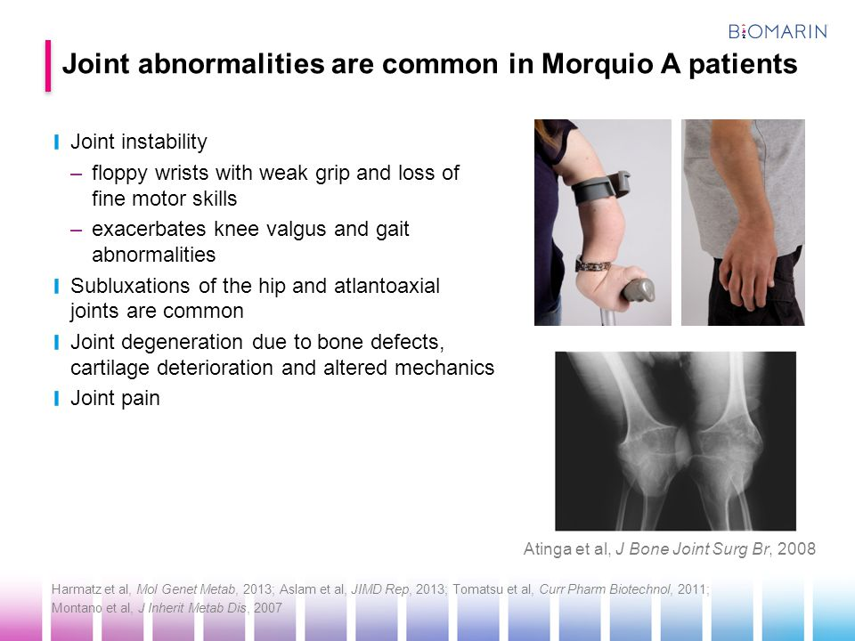 Joint abnormalities are common in Morquio A patients
