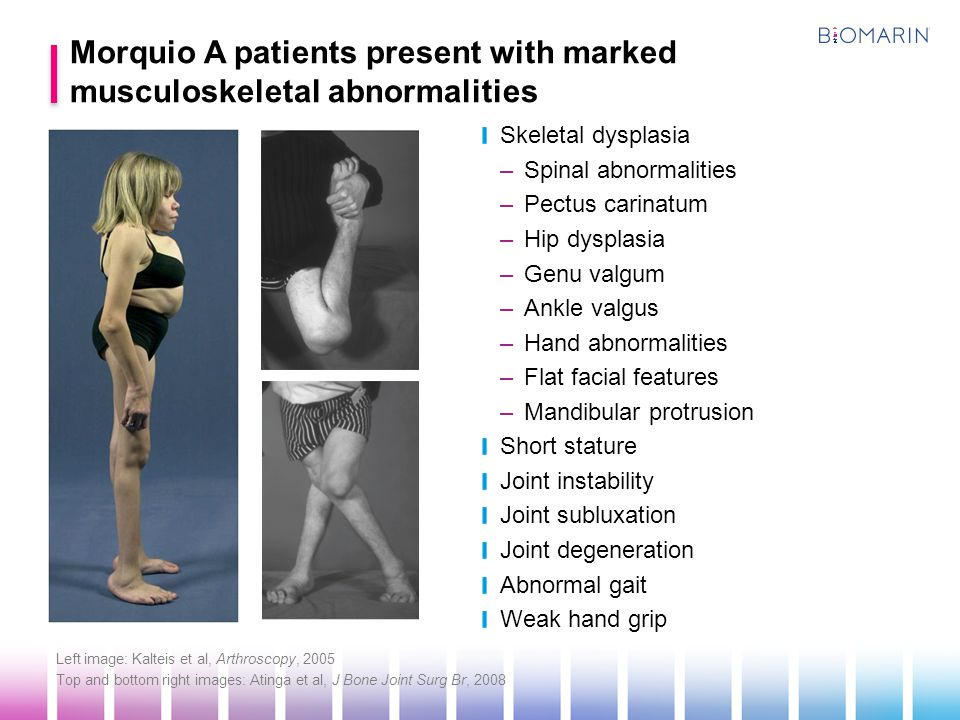 Morquio A patients present with marked musculoskeletal abnormalities
