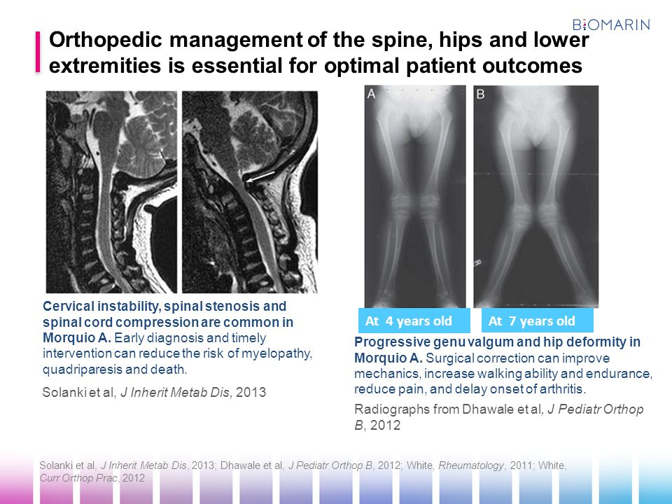 Orthopedic management of the spine, hips and lower extremities is essential for optimal patient outcomes