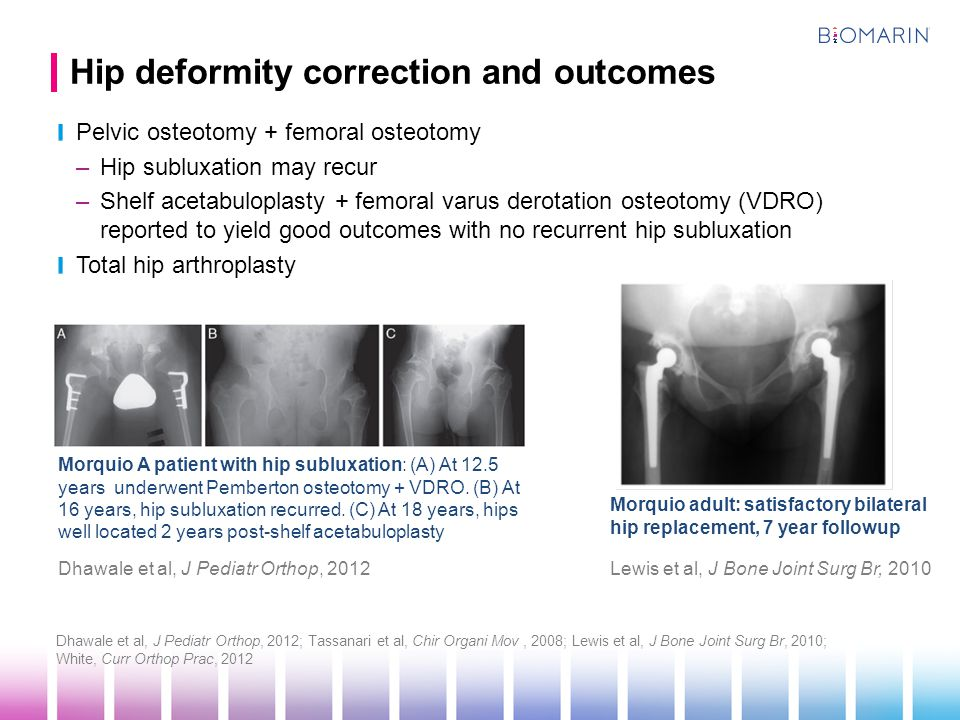 Hip deformity correction and outcomes