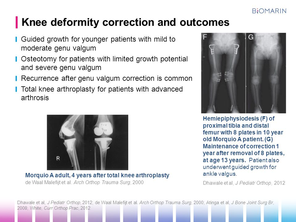 Knee deformity correction and outcomes
