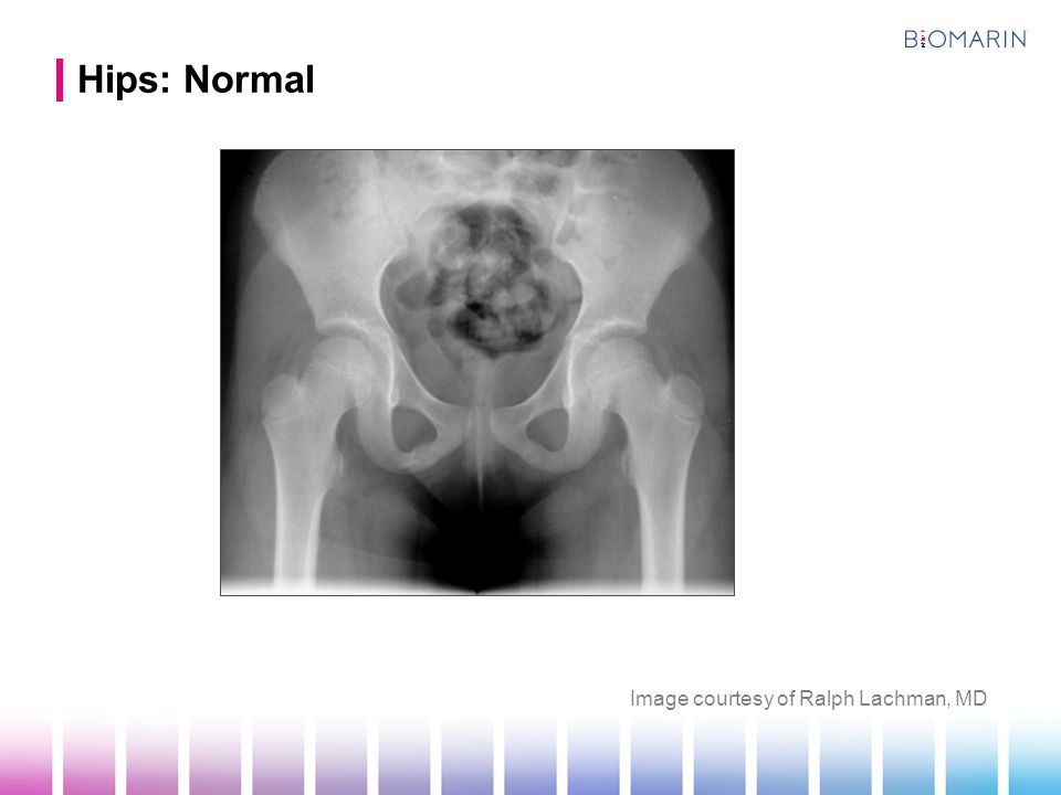 Hips: Normal Image courtesy of Ralph Lachman, MD