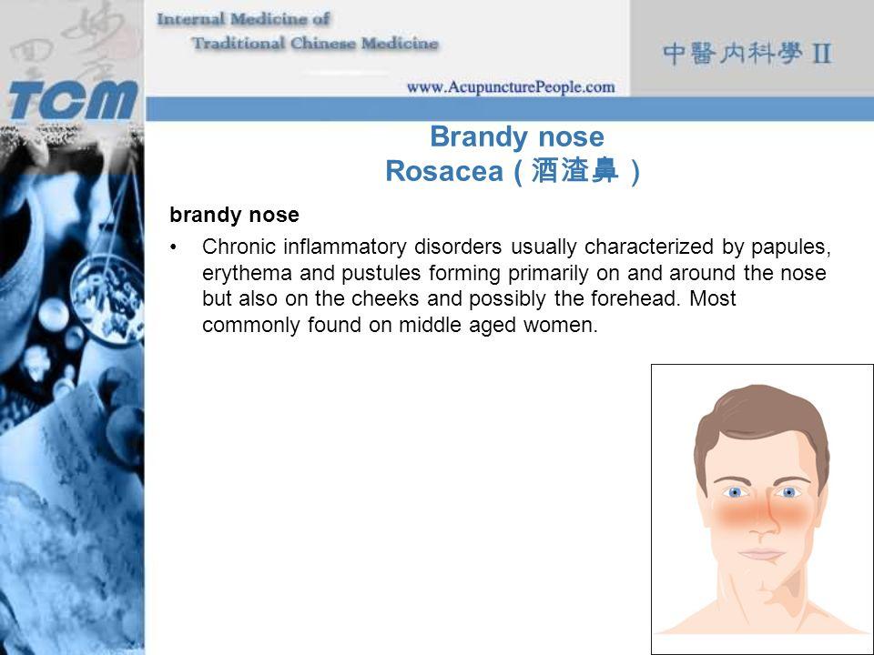 Brandy nose Rosacea ( 酒渣鼻)