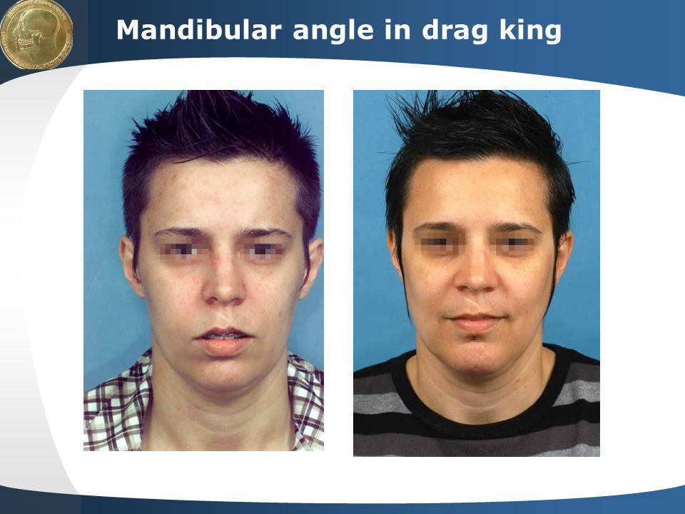 Mandibular angle in drag king