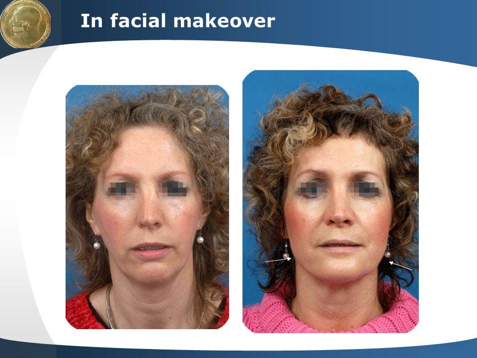 In facial makeover
