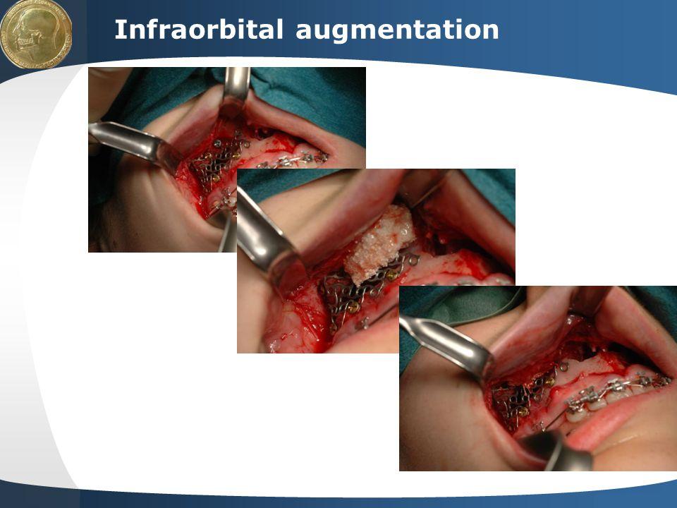 Infraorbital augmentation