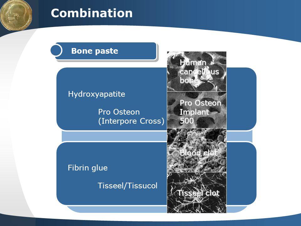 Combination Bone paste Human cancellous bone Hydroxyapatite Pro Osteon