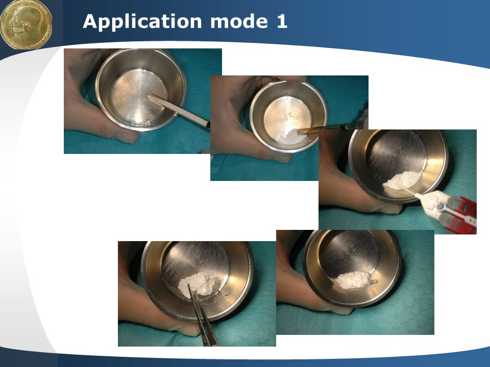 Application mode 1