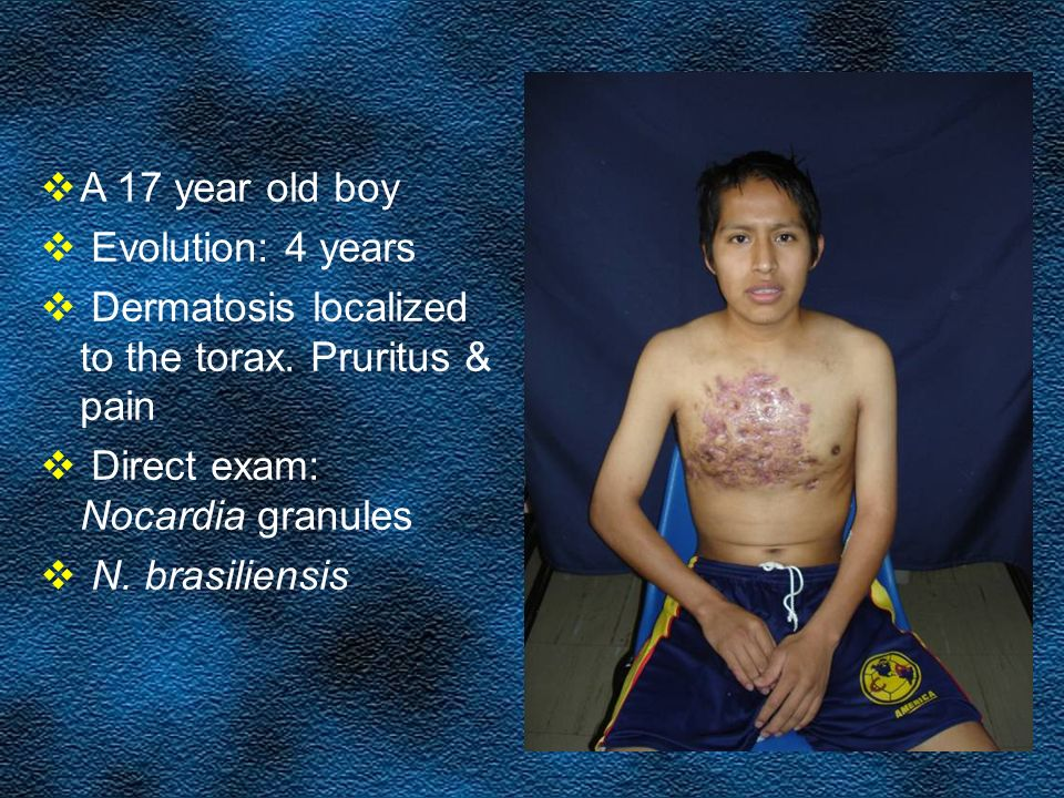 A 17 year old boy Evolution: 4 years. Dermatosis localized to the torax. Pruritus & pain. Direct exam: Nocardia granules.