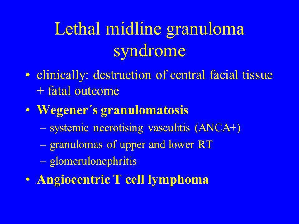 Lethal midline granuloma syndrome