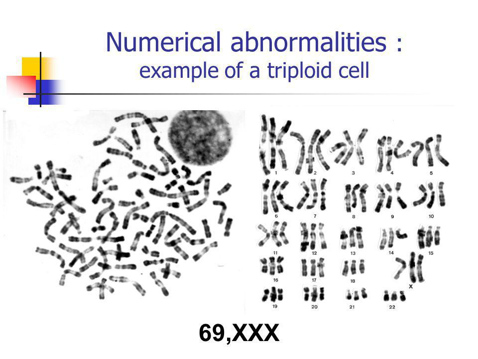 Numerical abnormalities : example of a triploid cell