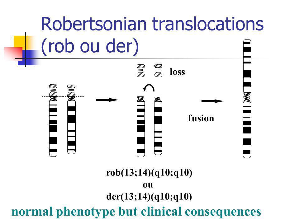 Robertsonian translocations (rob ou der)