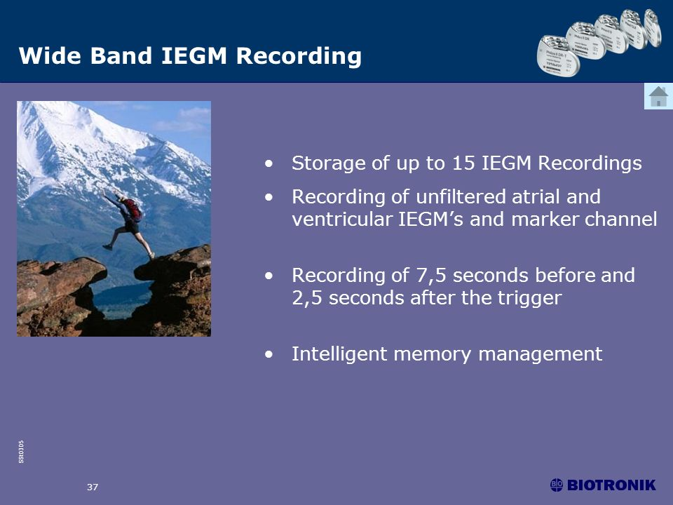 Wide Band IEGM Recording