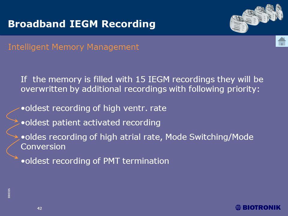Broadband IEGM Recording