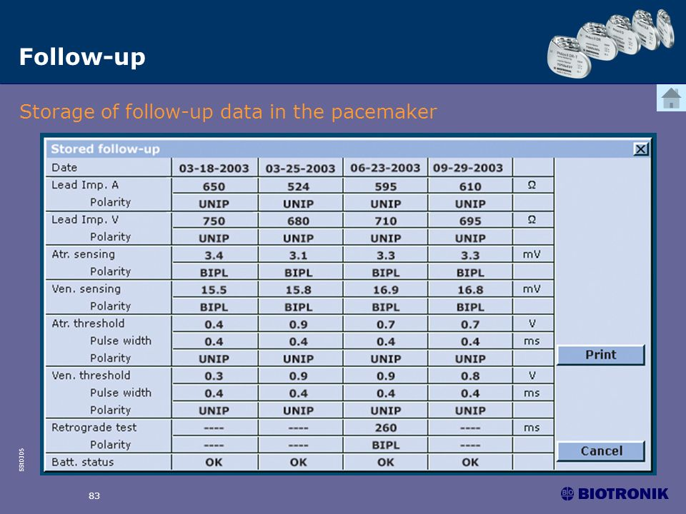 Follow-up Storage of follow-up data in the pacemaker 83