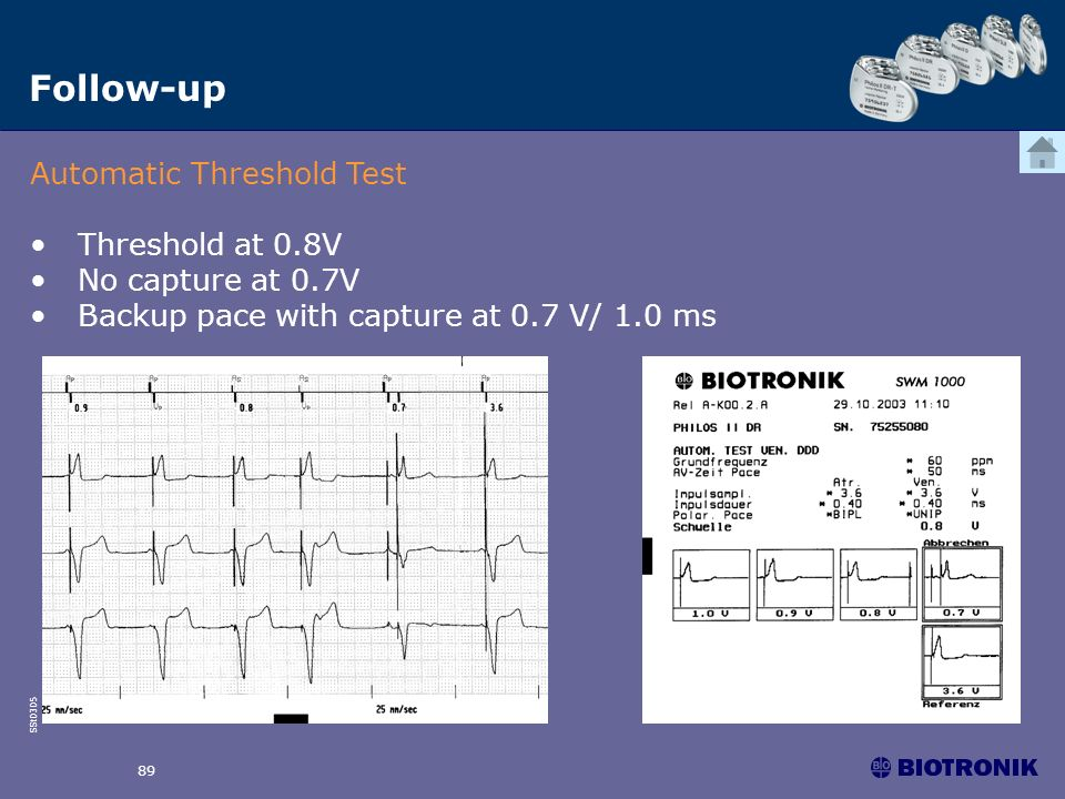 Follow-up Automatic Threshold Test Threshold at 0.8V