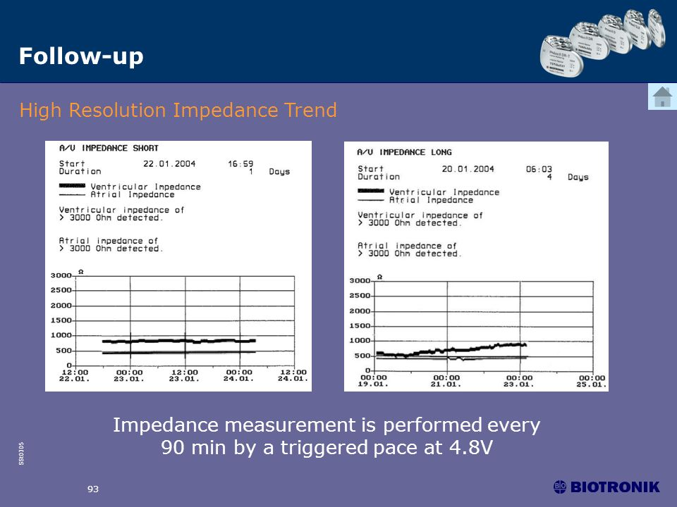 Follow-up High Resolution Impedance Trend