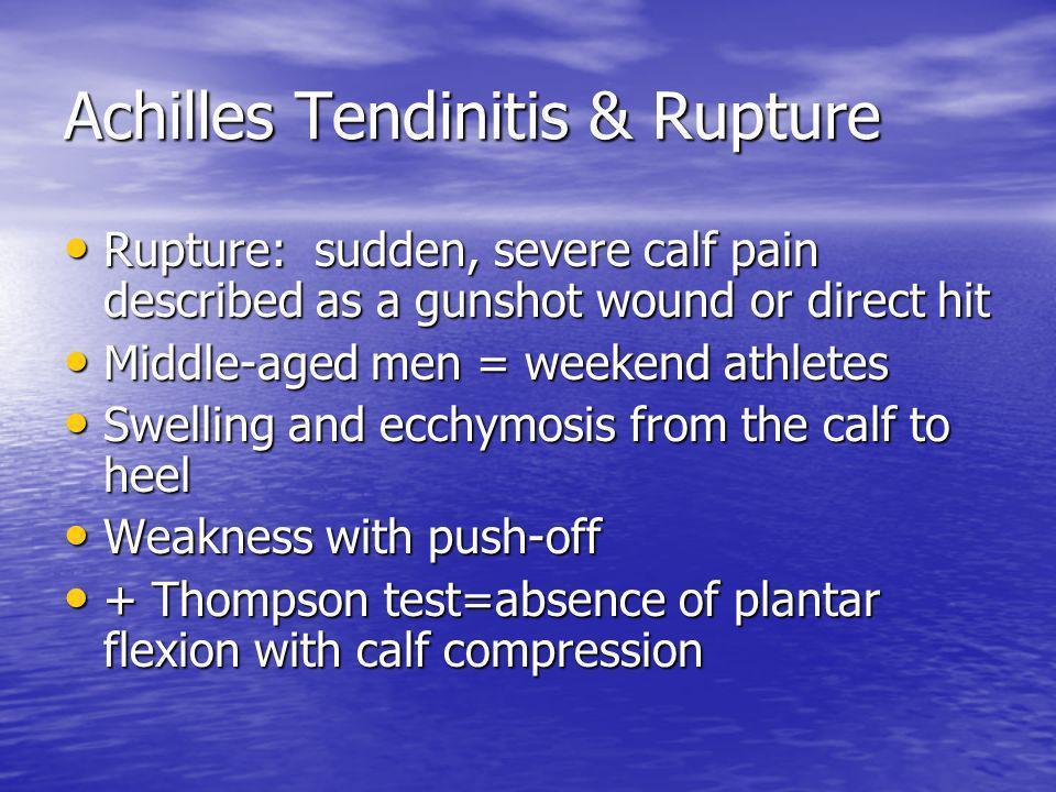 Achilles Tendinitis & Rupture