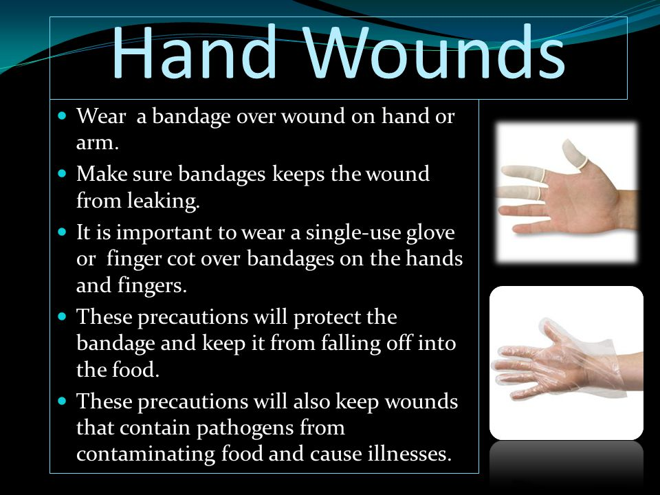 Hand Wounds Wear a bandage over wound on hand or arm.