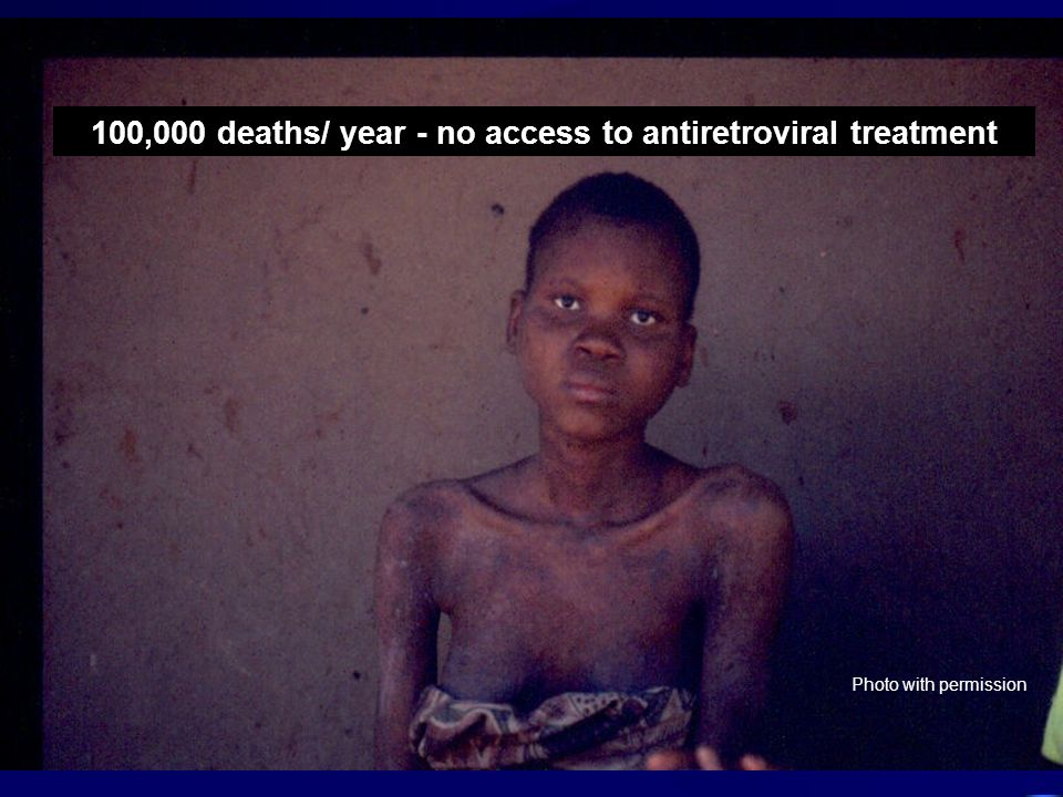 100,000 deaths/ year - no access to antiretroviral treatment