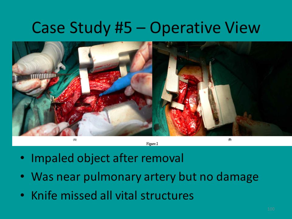 Case Study #5 – Operative View