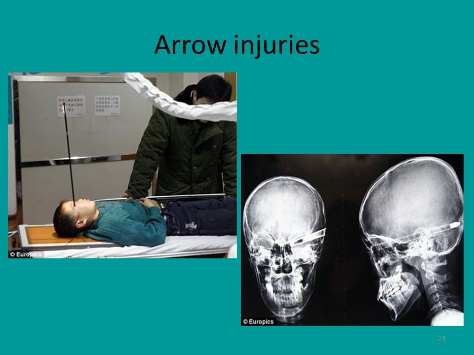 Arrow injuries