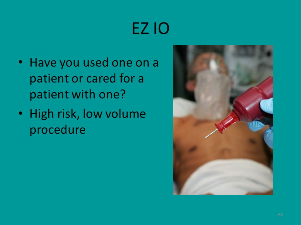 EZ IO Have you used one on a patient or cared for a patient with one