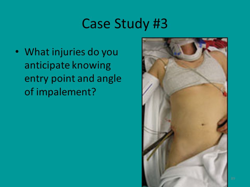 Case Study #3 What injuries do you anticipate knowing entry point and angle of impalement