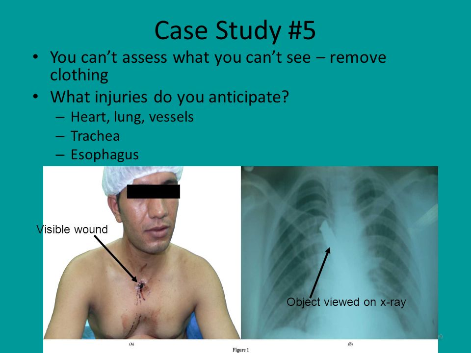 Case Study #5 You can't assess what you can't see – remove clothing