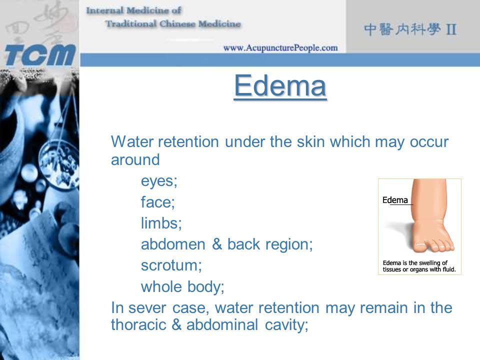 Edema Water retention under the skin which may occur around eyes;