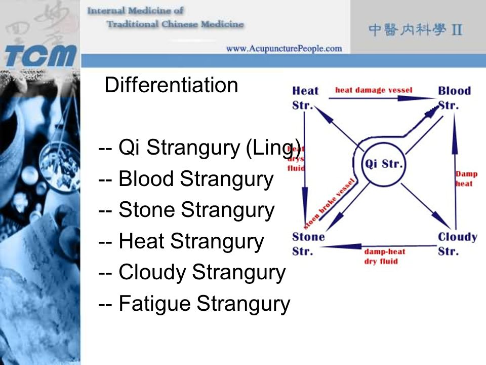 Differentiation -- Qi Strangury (Ling) -- Blood Strangury. -- Stone Strangury. -- Heat Strangury.