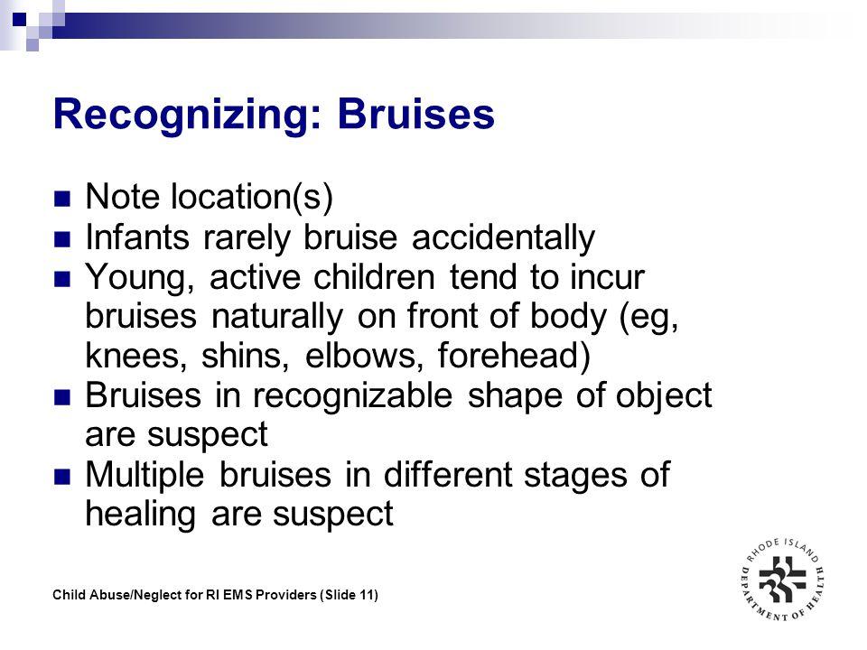 Recognizing: Bruises Note location(s)