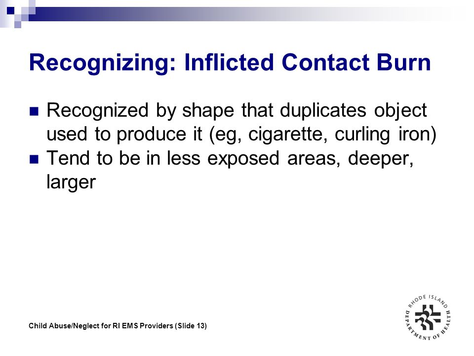Recognizing: Inflicted Contact Burn