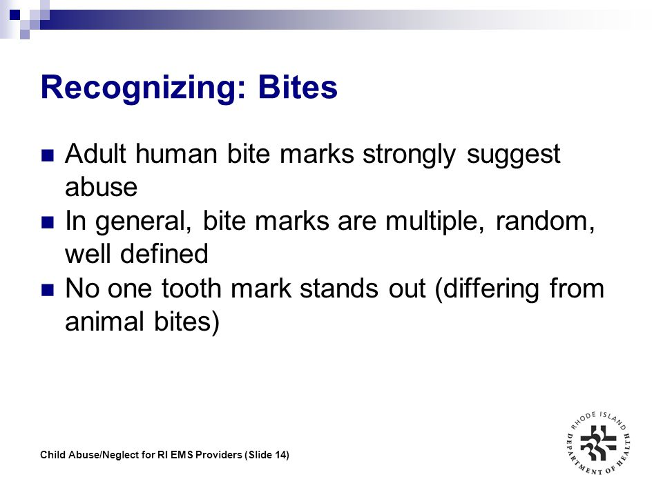Recognizing: Bites Adult human bite marks strongly suggest abuse