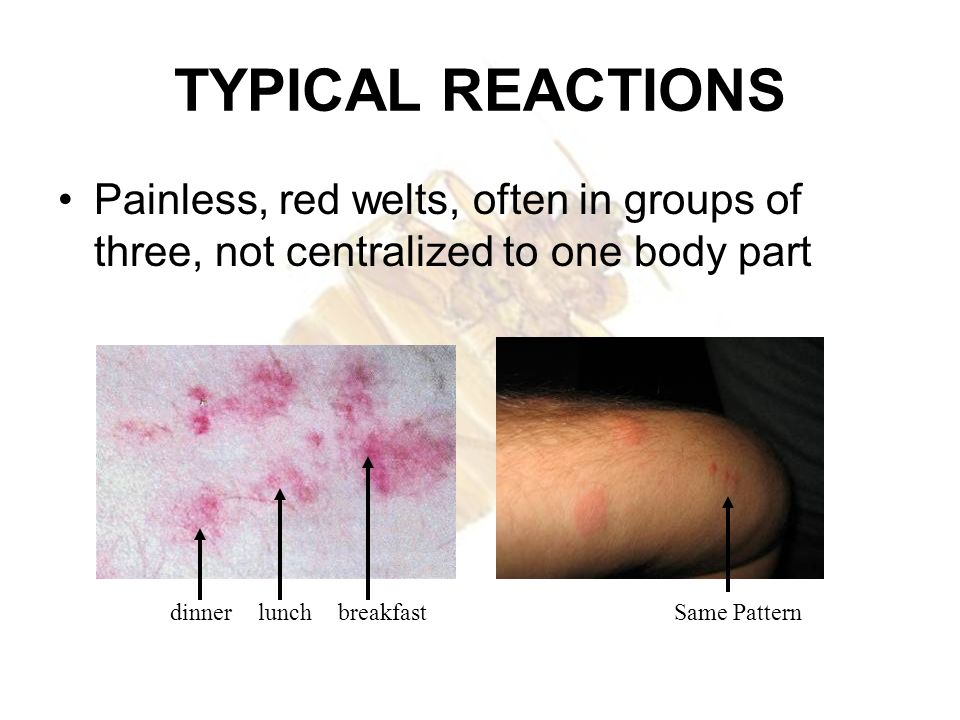 TYPICAL REACTIONSPainless, red welts, often in groups of three, not centralized to one body part.
