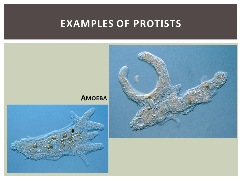 Examples of Protists Amoeba