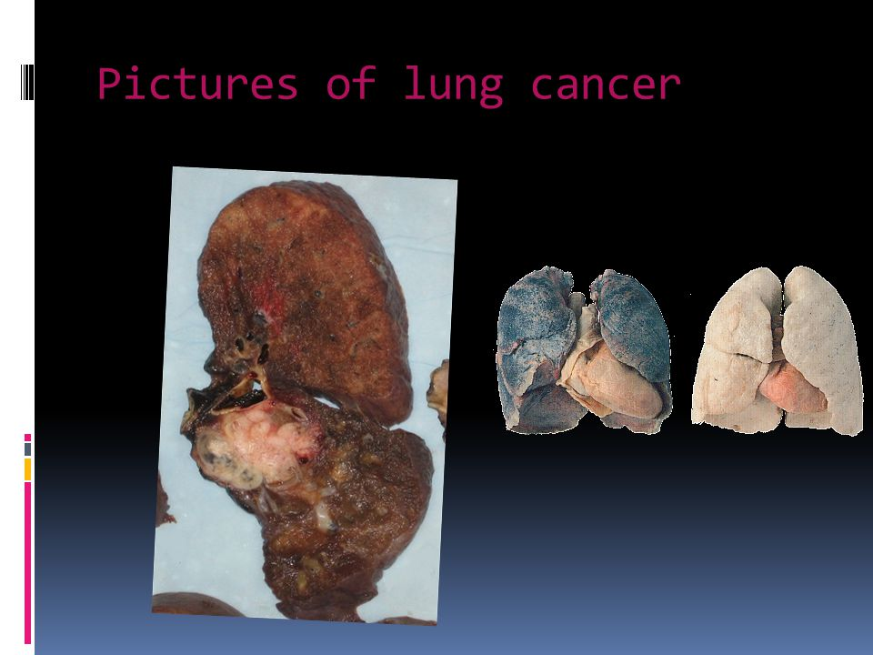 Pictures of lung cancer